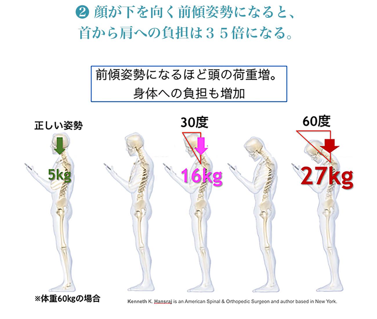 前傾姿勢の身体への負担