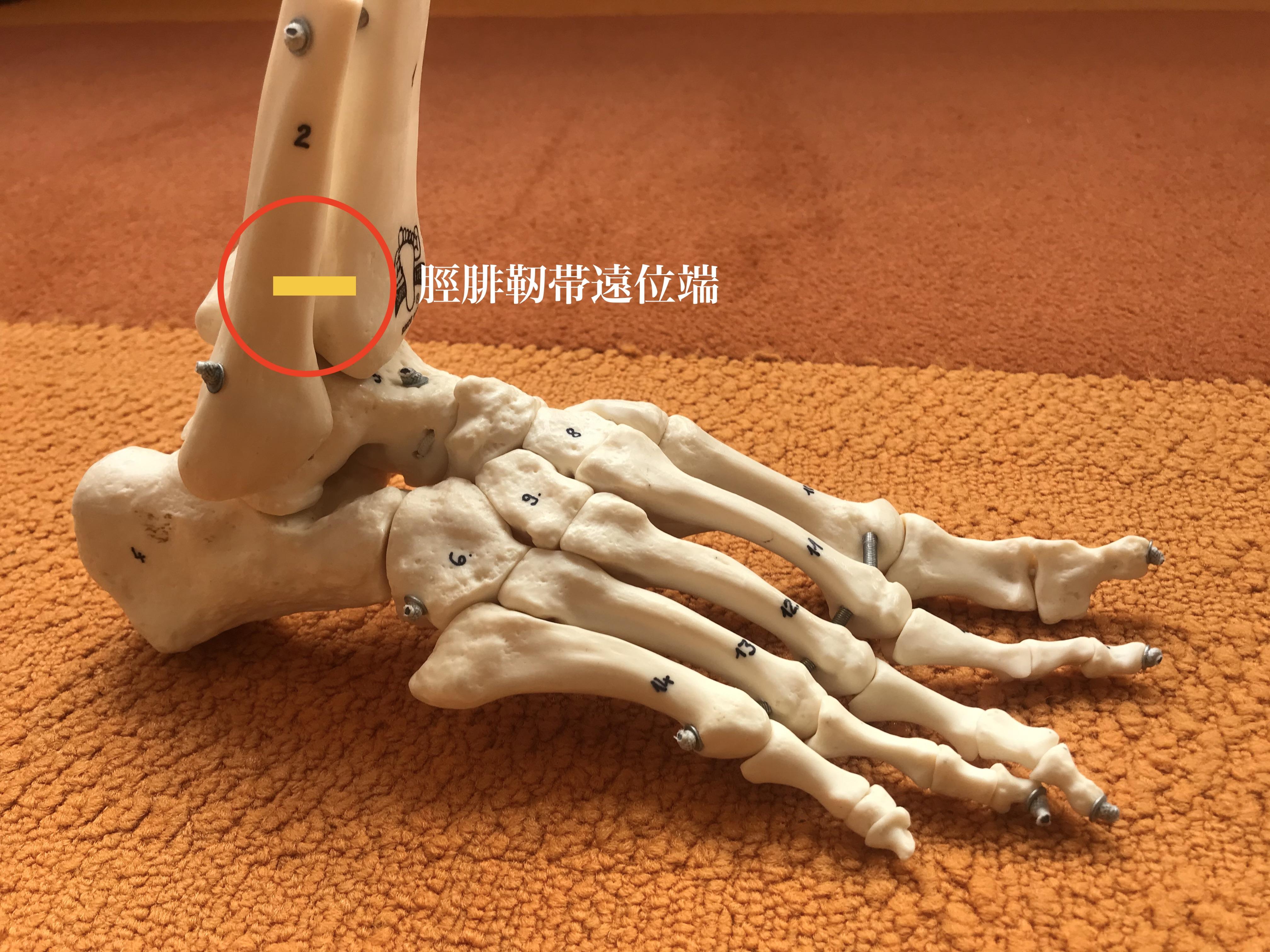 腓 靭帯 前 距 くるぶし